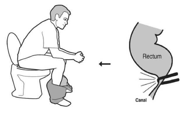 comment s 39 asseoir aux toilettes pal o r gime. Black Bedroom Furniture Sets. Home Design Ideas